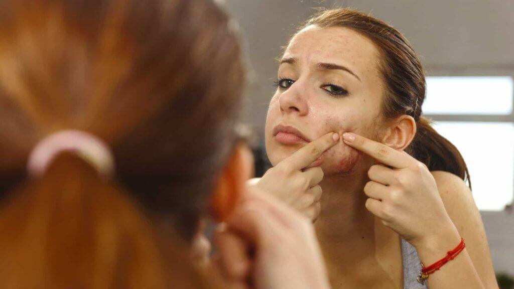 Exames hormonais podem auxiliar no tratamento e diagnóstico da acne.
